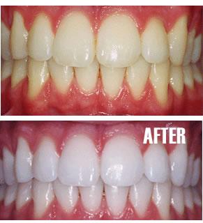 وصفات تبيض الاسنان
